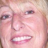 Professional Home Caregiver LPN
